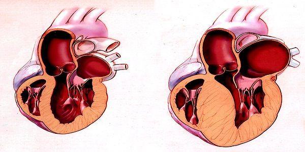 Левый желудочек сердца: расположение, функции