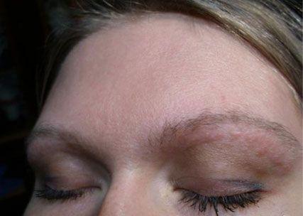Аллергия на тени для век что делать